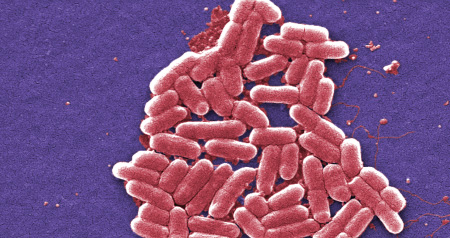 It's time for Trudeau to join the battle against 'superbugs' (Anglais)